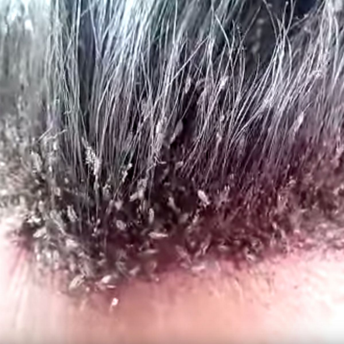 How to Get Rid of Head Lice in Nigeria