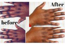 Best Creams for Dark Knuckles in Nigeria